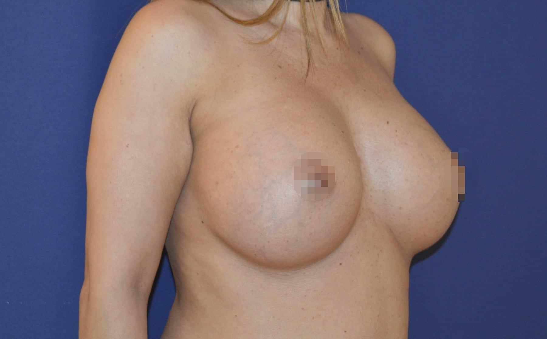Brustvergrößerung B auf D