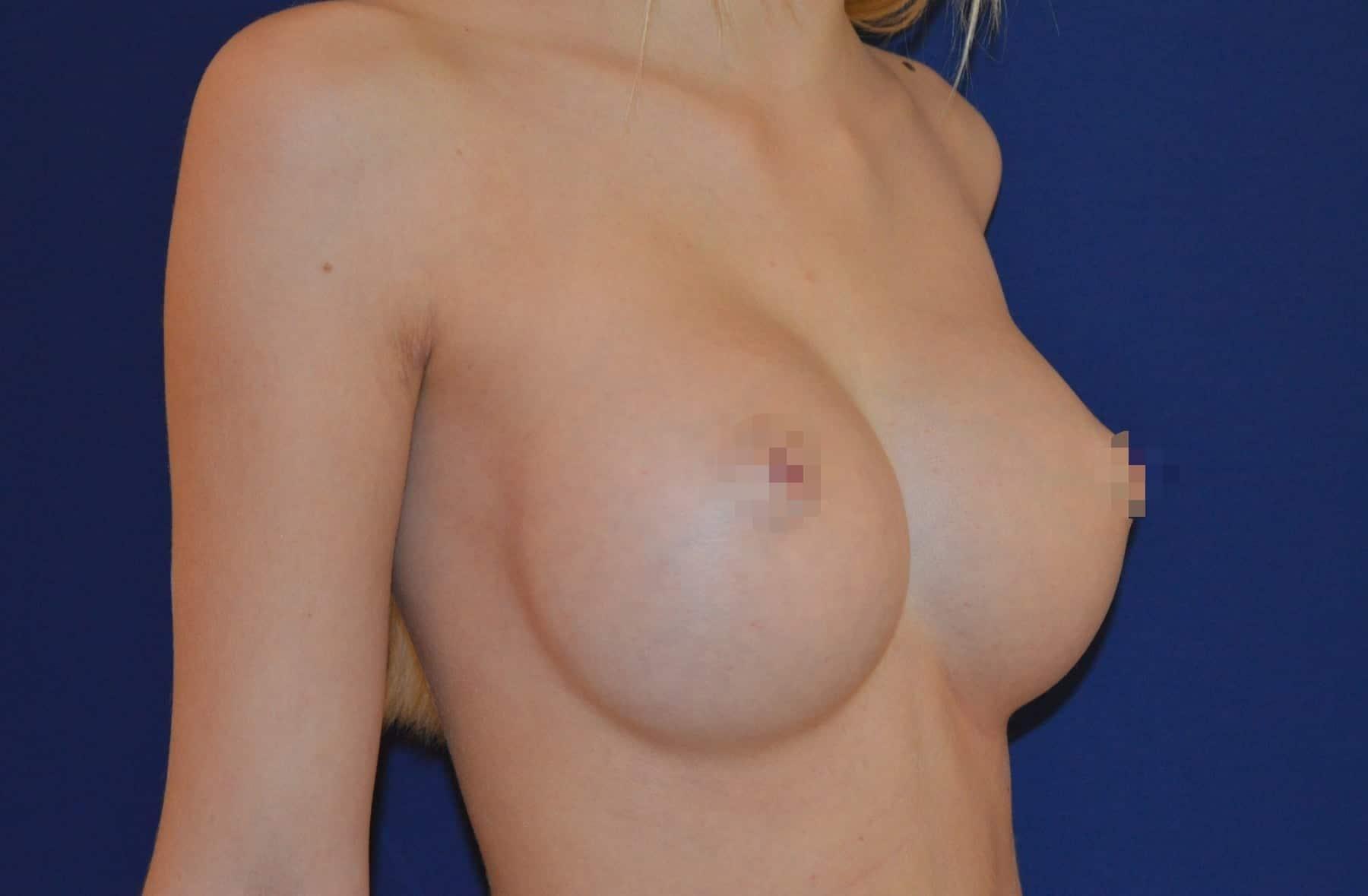 Brustvergrößerung A auf D