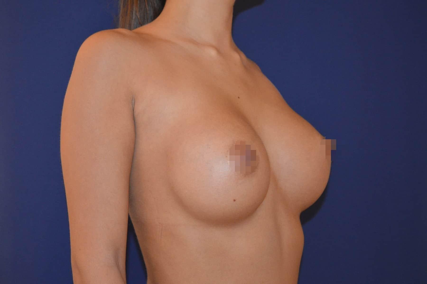 Brustvergrößerung A auf B