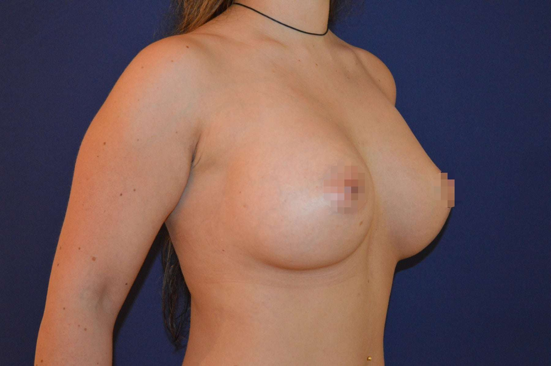 Brustvergrößerung B auf C