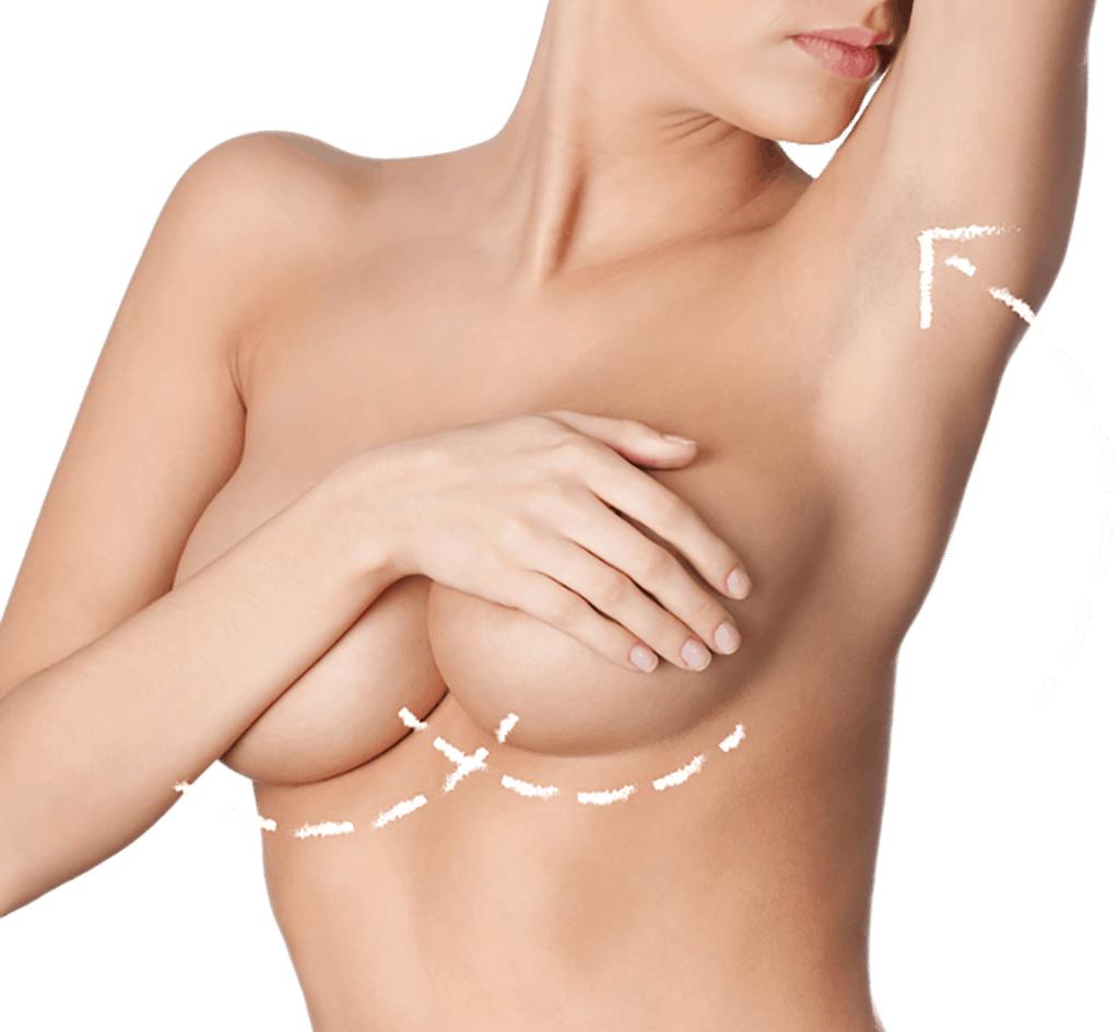 Endoskopische Brustvergrößerung